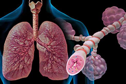 sh-asthma01